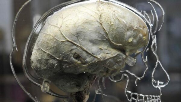 An outbreak of an unknown prion disease affecting the brain was recorded in Canada 8